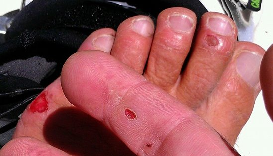 What 600km of kiting will do to your feet and hands